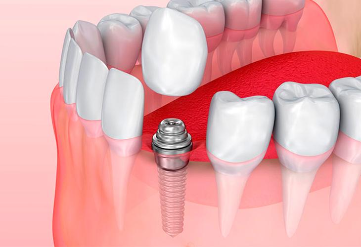 Современная стоматология – безопасная имплантация зубов
