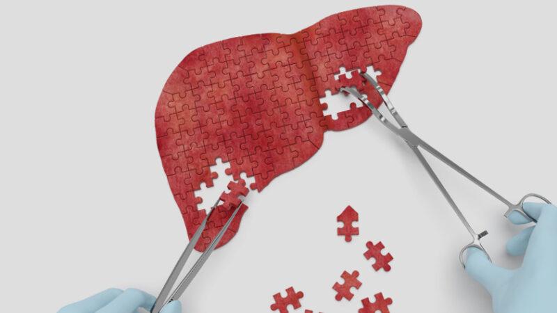 Все о гепатите С: причины, диагностика, лечение